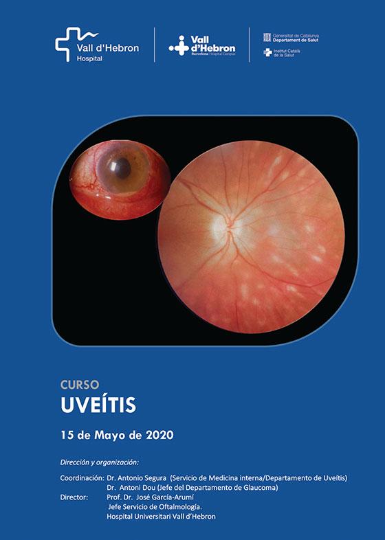 curso_uveitis_2020_big